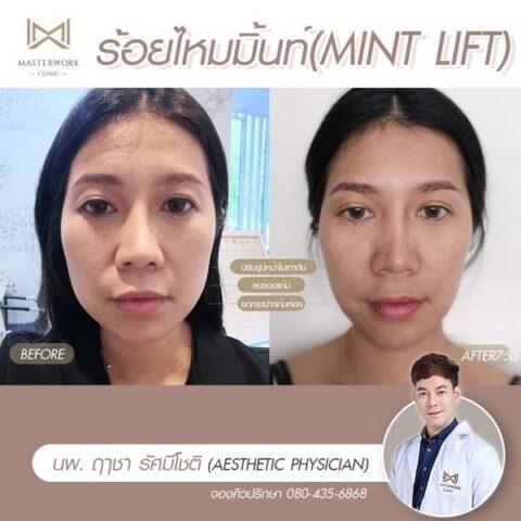 คลินิกร้อยไหม รีวิวไหมมิ้นท์ MINT masterwork clinic00001