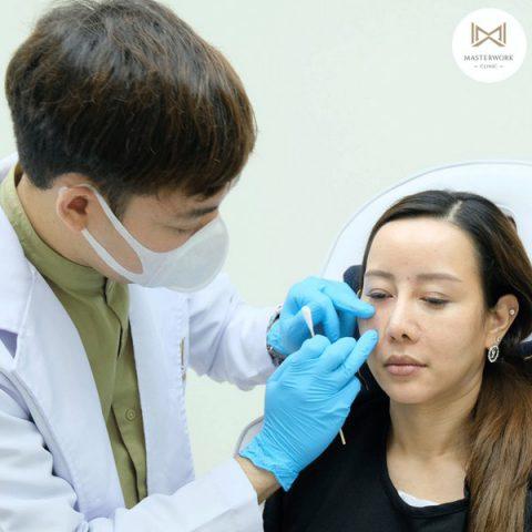 ฉีดฟิลเลอร์ที่ไหนดี masterwork clinic รีวิวฟิลเลอร์ หมอไอซ์00011