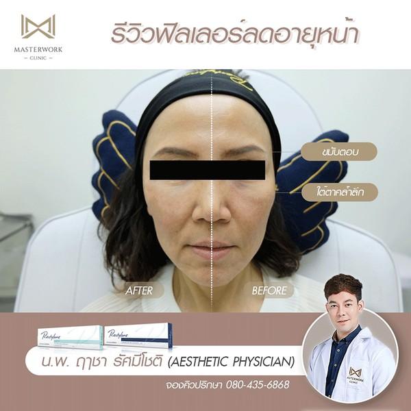 ฉีดฟิลเลอร์ที่ไหนดี masterwork clinic รีวิวฟิลเลอร์ หมอไอซ์00071