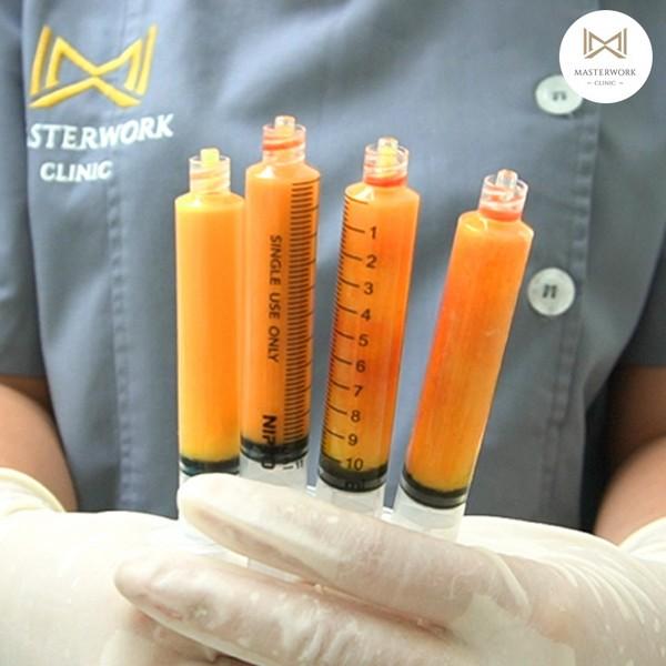ฉีดไขมัน ไขมันตัวเอง ฉีดไขมันหน้าเด็ก masterwork clinic00065
