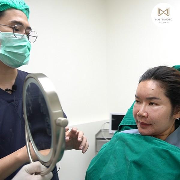 ฉีดไขมัน ไขมันตัวเอง ฉีดไขมันหน้าเด็ก masterwork clinic00066