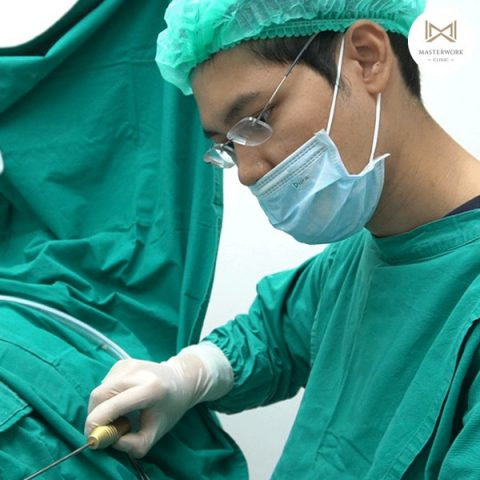 ดูดไขมัน ดูดไขมันต้นขา ดูดไขมันหน้าท้อง masterwork clinic00002