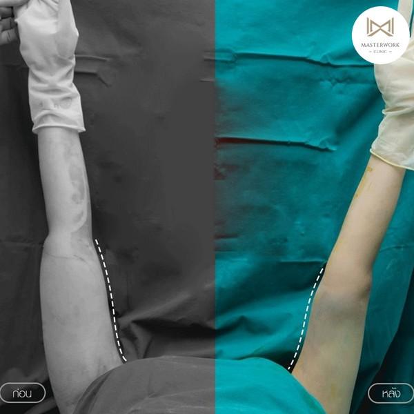 ดูดไขมัน ดูดไขมันต้นขา ดูดไขมันหน้าท้อง masterwork clinic00006