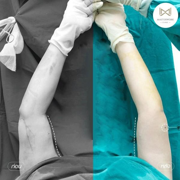 ดูดไขมัน ดูดไขมันต้นขา ดูดไขมันหน้าท้อง masterwork clinic00007