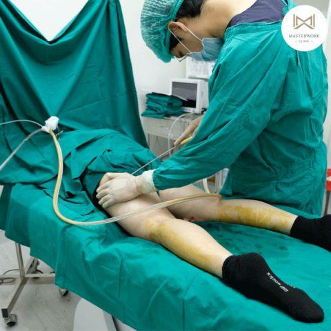 ดูดไขมัน ดูดไขมันต้นขา ดูดไขมันหน้าท้อง masterwork clinic00027