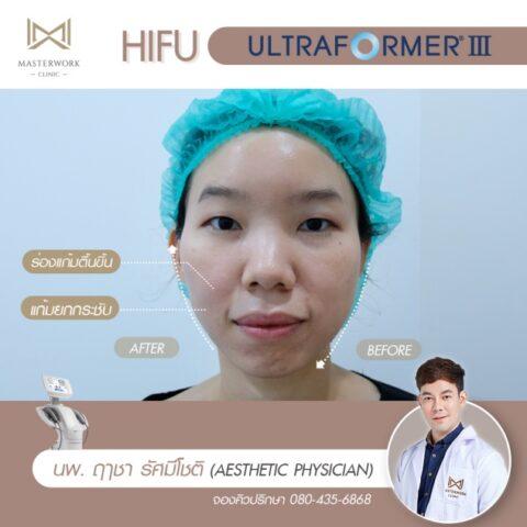 ทำ hifu ที่ไหนดี รีวิว hifu mmfu masterwork clinic
