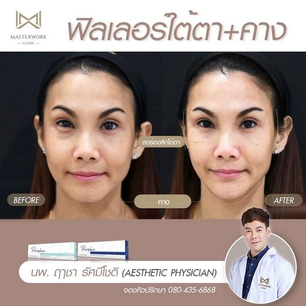 ฟิลเลอร์คาง รีวิวสวยๆ หมอไอซ์ masterwork clinic00001