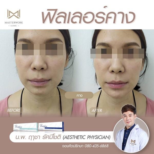 ฟิลเลอร์คาง เสริมคาง ฉีดคาง หมอไอซ์ masterwork clinic00002