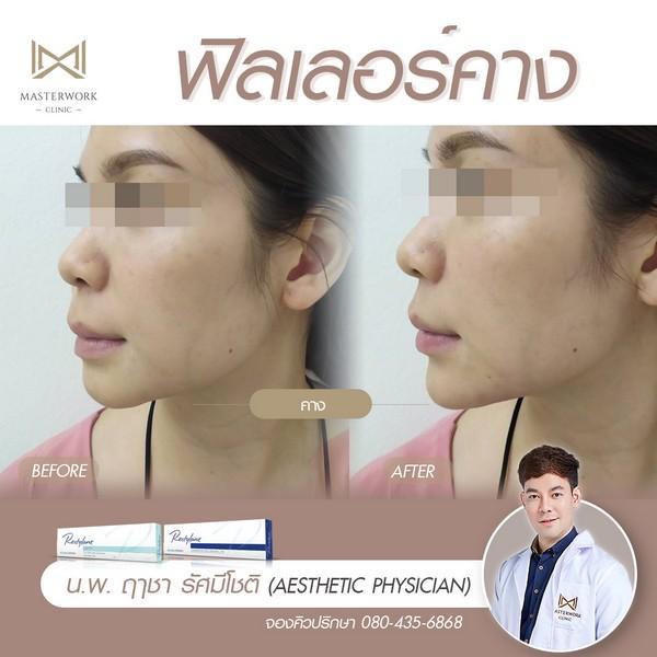 ฟิลเลอร์คาง เสริมคาง ฉีดคาง หมอไอซ์ masterwork clinic00003