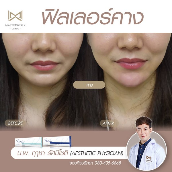ฟิลเลอร์คาง เสริมคาง ฉีดคาง หมอไอซ์ masterwork clinic00004