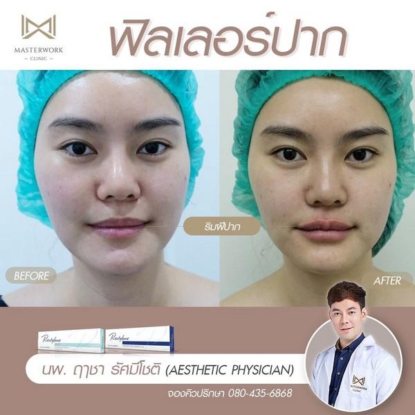 ฟิลเลอร์ปาก รีวิวสวยๆ หมอไอซ์ masterwork clinic00003