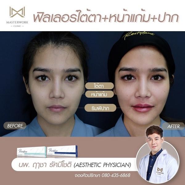 ฟิลเลอร์แก้มส้ม mid face รีวิวสวยๆ หมอไอซ์ masterwork clinic00001