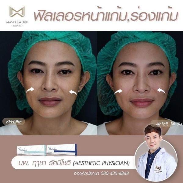 ฟิลเลอร์แก้มส้ม mid face รีวิวสวยๆ หมอไอซ์ masterwork clinic00003