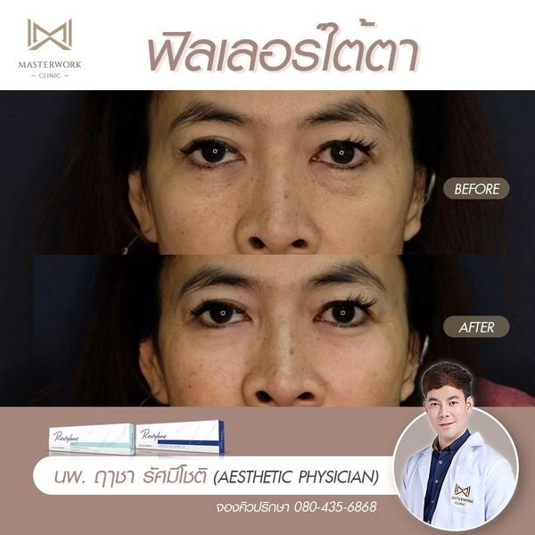 ฟิลเลอร์ใต้ตา รีวิวสวยๆ หมอไอซ์ masterwork clinic00008
