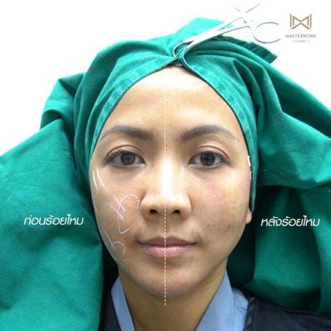 หน้าแก่กว่าวัย ทำยังไง วิธีทำหน้าเด็ก masterwork clinic00001