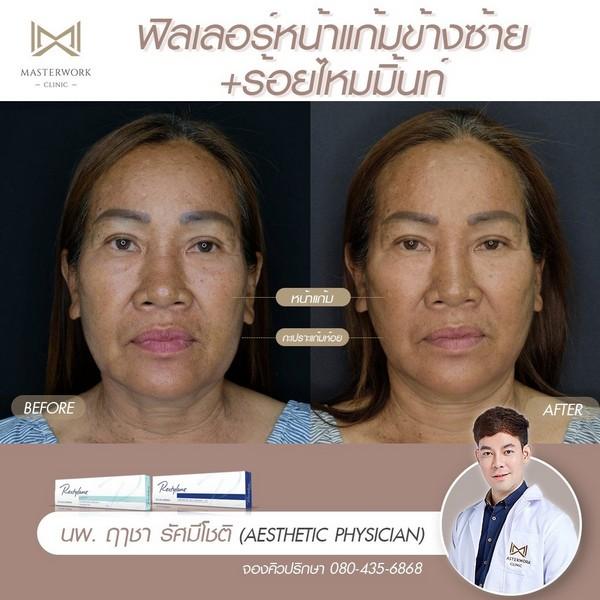 หมอฉีดฟิลเลอร์เก่ง ฉีดฟิลเลอร์ที่ไหนดี masterwork clinic00005