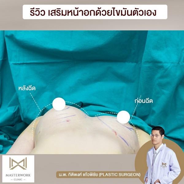 เติมไขมันหน้าอก อกสวย อกชิด เสริมหน้าอก masterwork clinic00002