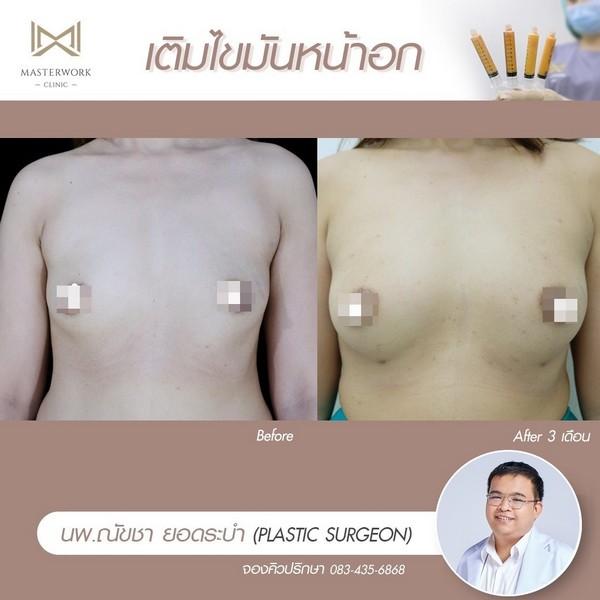 เติมไขมันหน้าอก อกสวย อกชิด เสริมหน้าอก masterwork clinic00012