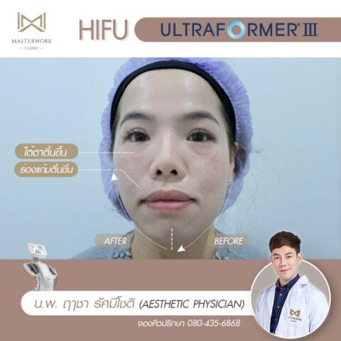 3ทำ hifu ที่ไหนดี รีวิว hifu mmfu masterwork clinic