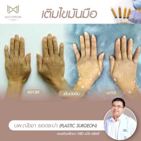 6 รีวิวฉีดไขมัน เติมไขมันมือ ฟิลเลอร์มือ masterwork clinic