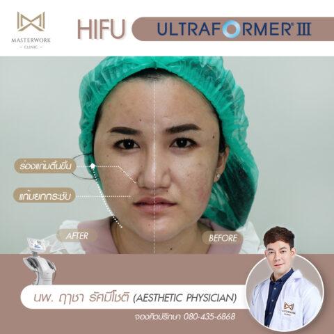 2ทำ hifu ที่ไหนดี รีวิว hifu mmfu masterwork clinic