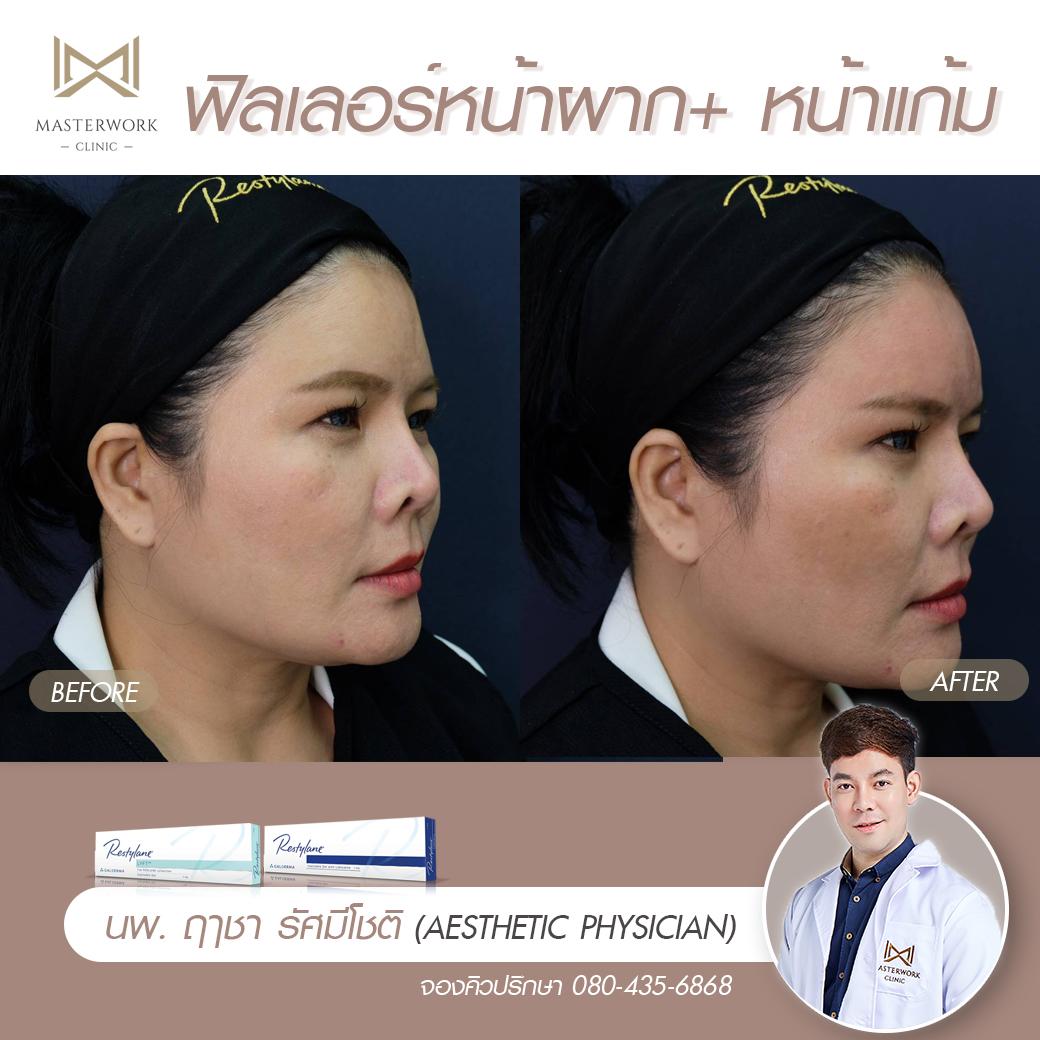 ฟิลเลอร์คาง เสริมคาง ฉีดคาง หมอไอซ์ masterwork clinic00005