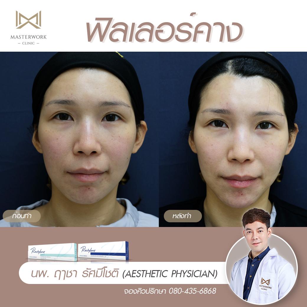 ฟิลเลอร์คาง เสริมคาง ฉีดคาง หมอไอซ์ masterwork clinic00008