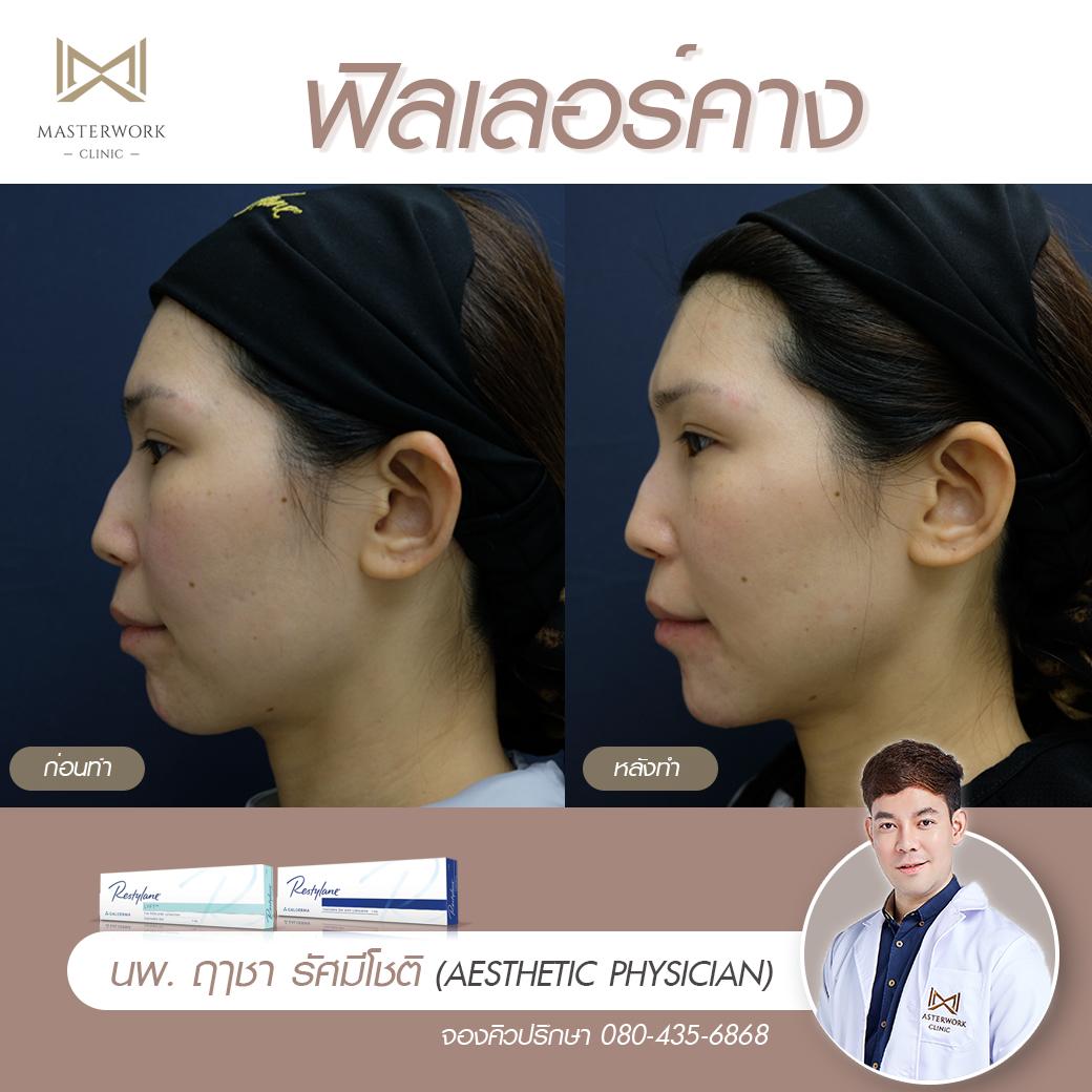 ฟิลเลอร์คาง เสริมคาง ฉีดคาง หมอไอซ์ masterwork clinic00009