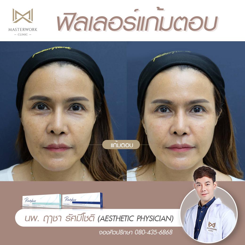 ฉีดฟิลเลอร์ที่ไหนดี masterwork clinic รีวิวฟิลเลอร์ หมอไอซ์000011