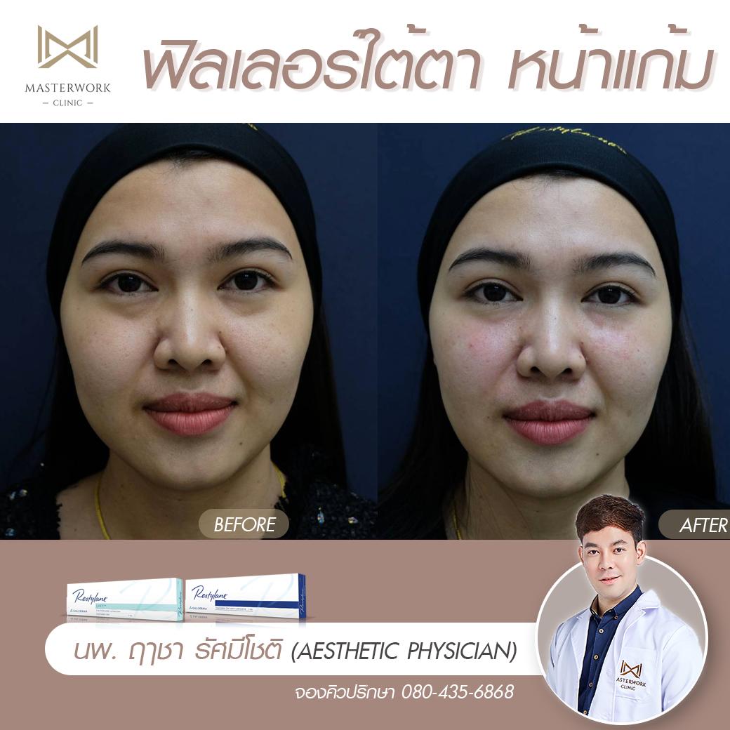 รีวิวฟิลเลอร์ใต้ตา ปาก ขมับตอบ masterwork clinic00051