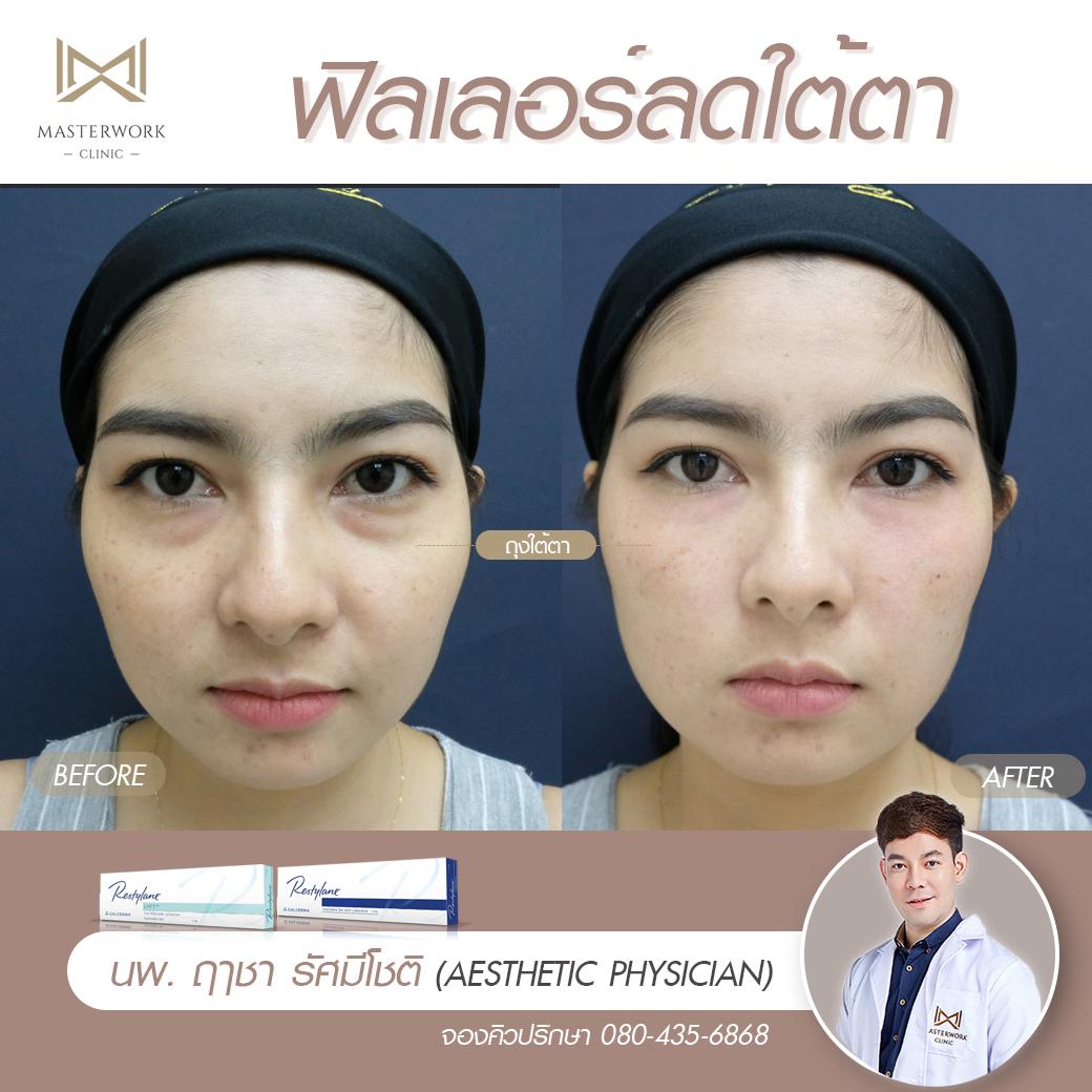 รีวิวฟิลเลอร์ใต้ตา ปาก ขมับตอบ masterwork clinic000045