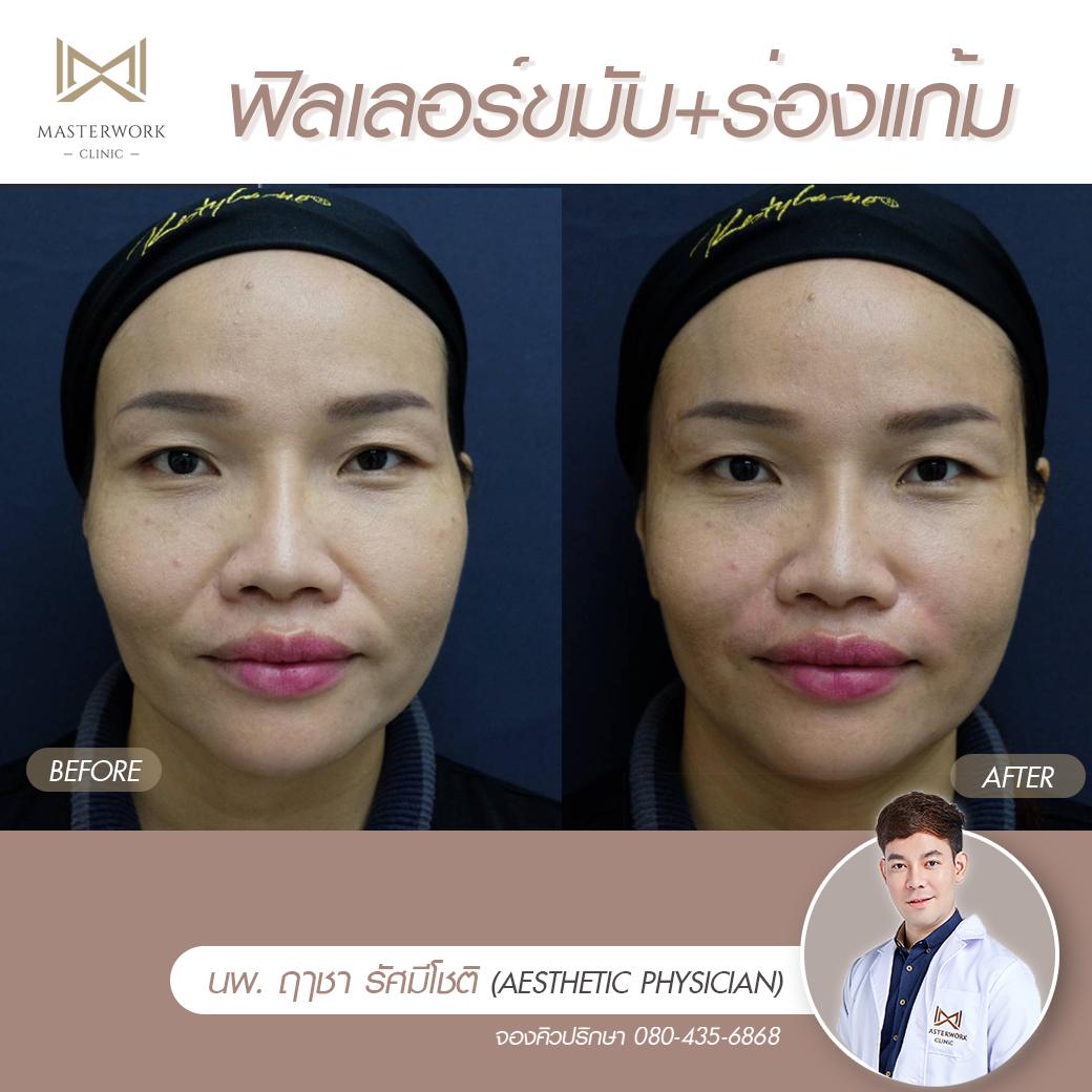 โปรโมชั่น คลินิกความงาม ดูดไขมัน masterwork clinic000015