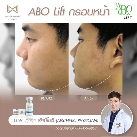 abo active 3d lift ฉีดโบท็อกซ์ลดร้อยรอย กระตุ้นคอลลาเจน masterwork clinic00008