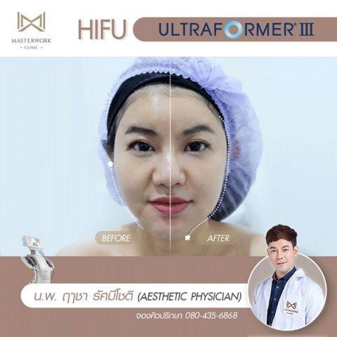 hifu mmfu hifu ที่ดีที่สุด เห็นผลชัดสุด masterwork clinic00001
