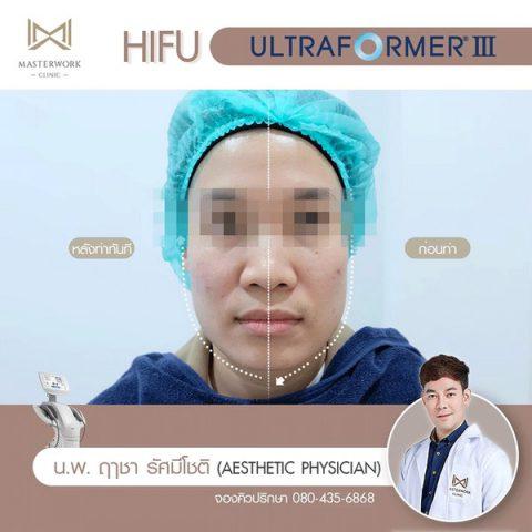 hifu mmfu hifu ที่ดีที่สุด เห็นผลชัดสุด masterwork clinic00005