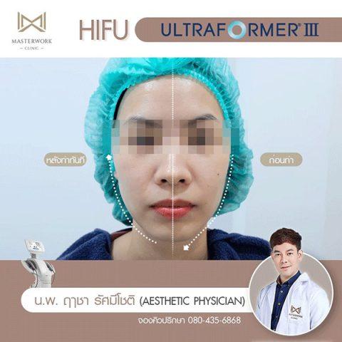 hifu mmfu hifu ที่ดีที่สุด เห็นผลชัดสุด masterwork clinic00006