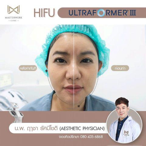 hifu mmfu hifu ที่ดีที่สุด เห็นผลชัดสุด masterwork clinic00007