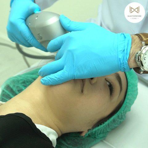 hifu mmfu hifu ที่ดีที่สุด เห็นผลชัดสุด masterwork clinic00013