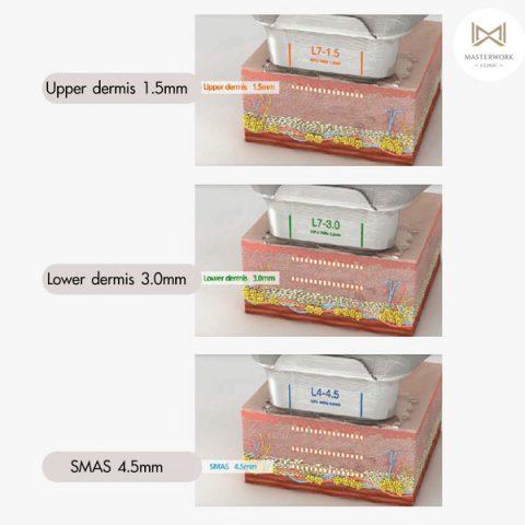hifu mmfu hifu ที่ดีที่สุด เห็นผลชัดสุด masterwork clinic00020