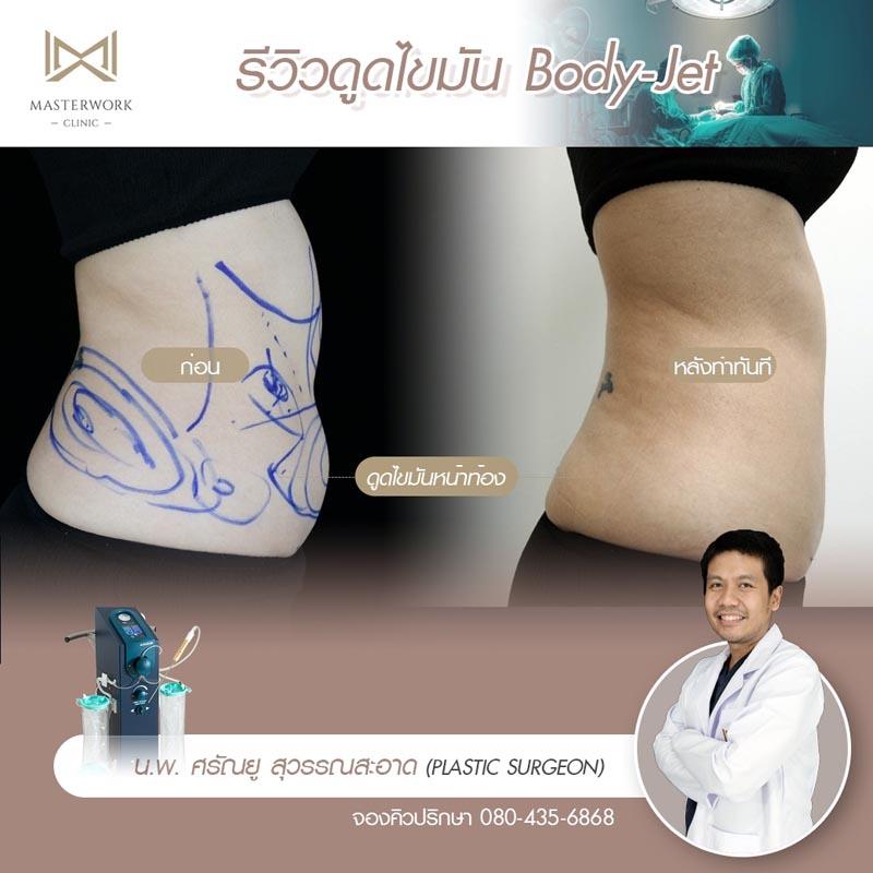 ดูดไขมัน ต้นแขน ต้นขา หน้าท้อง รีวิว vaser Masterwork clinic10
