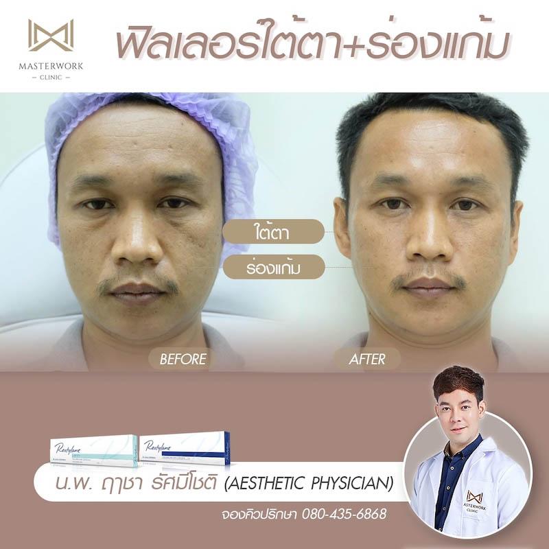 รีวิวฟิลเลอร์ หมอไอซ์ Masterwork clinic21