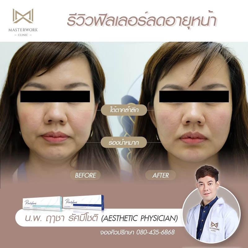 รีวิวฟิลเลอร์ หมอไอซ์ Masterwork clinic40