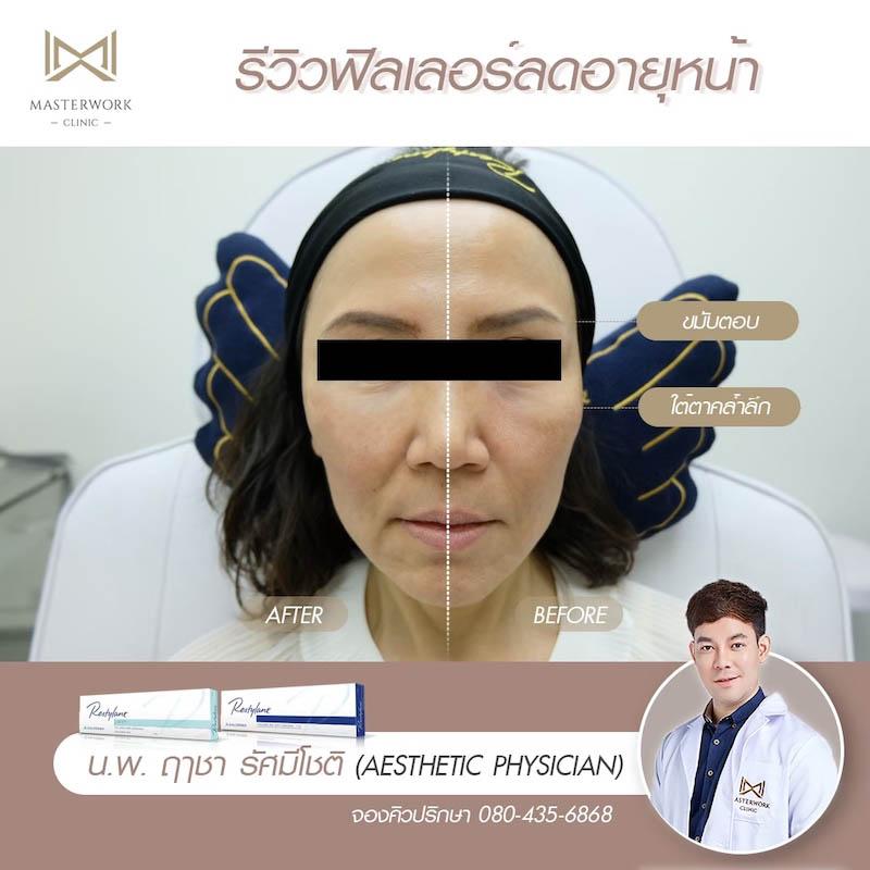 รีวิวฟิลเลอร์ หมอไอซ์ Masterwork clinic42
