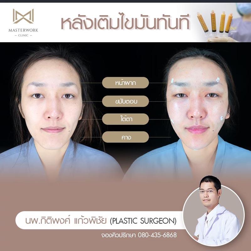 รีวิวเติมไขมัน ทั่วหน้า ฉีดไขมันทั่วหน้า ไม่จำกัด Masterwork clinic34