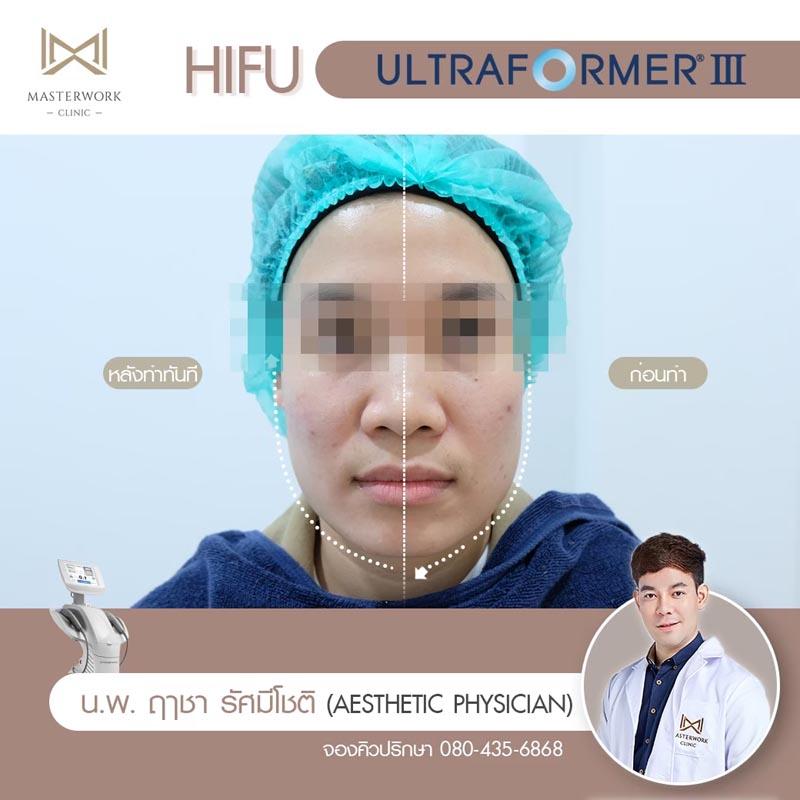 รีวิว hifu ultraformer iii โปรโมชั่น hifu Masterwork clinic11
