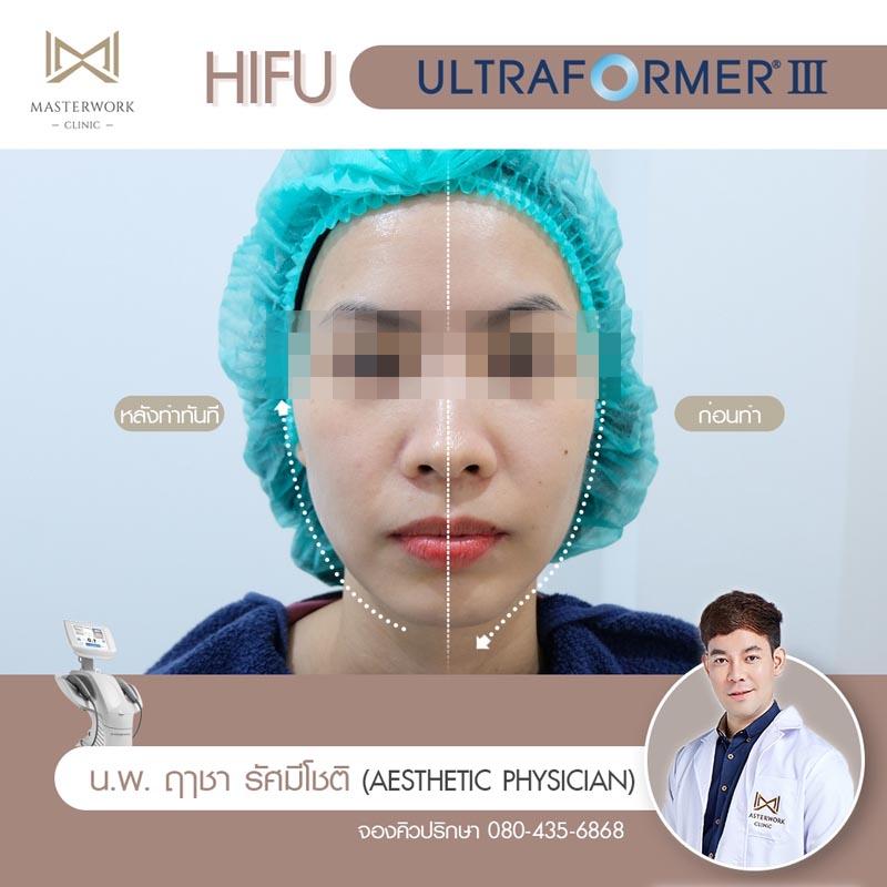 รีวิว hifu ultraformer iii โปรโมชั่น hifu Masterwork clinic12