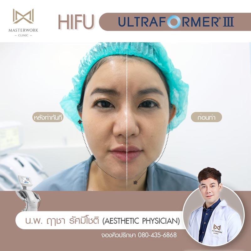 รีวิว hifu ultraformer iii โปรโมชั่น hifu Masterwork clinic13