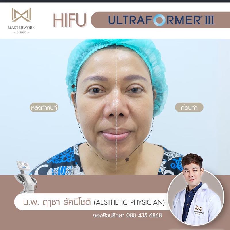 รีวิว hifu ultraformer iii โปรโมชั่น hifu Masterwork clinic14