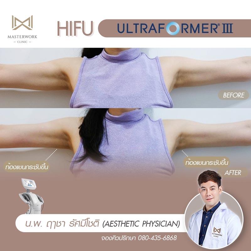 รีวิว hifu ultraformer iii โปรโมชั่น hifu Masterwork clinic15