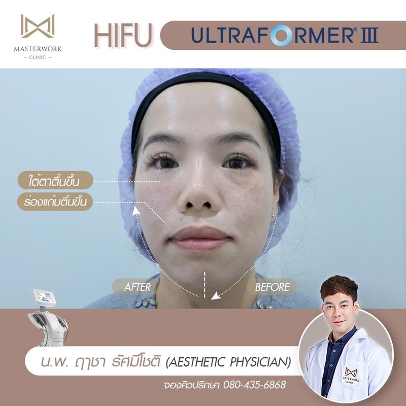 รีวิว hifu ultraformer iii โปรโมชั่น hifu Masterwork clinic2